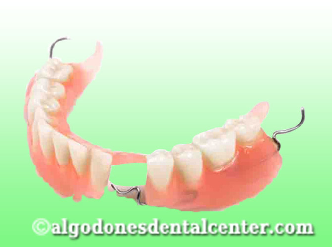 Dentures in Los Algodones