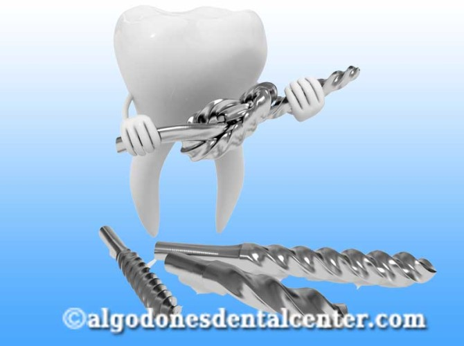 Dental Implants in Los Algodones