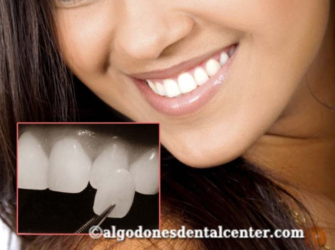 Dental Veneers in Algodones