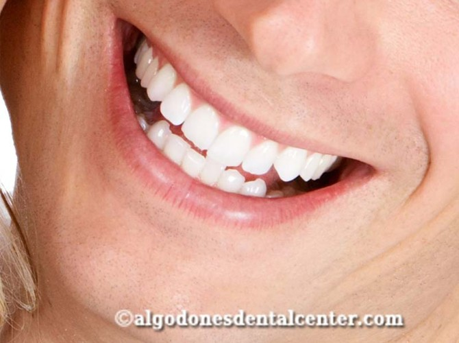 Dental Whitening in Los Algodones