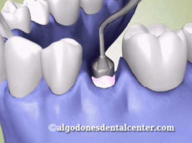 Bone Graft Surgery - Los Algodones