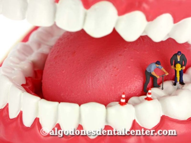 Root Canal Treatment - Algodones