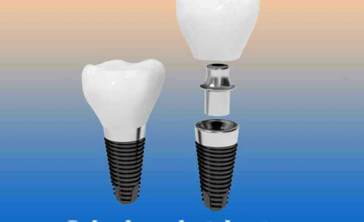 Dental Implants in Algodones - Mexico