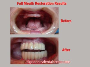 Full Mouth Restoration - Before-and-After - Los Algodones