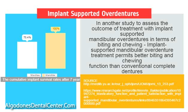 Implant Overdentures vs. Traditional Dentures