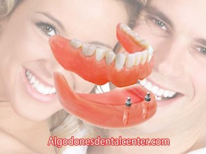 Implant-supported Overdentures - Los Algodones, Mexico