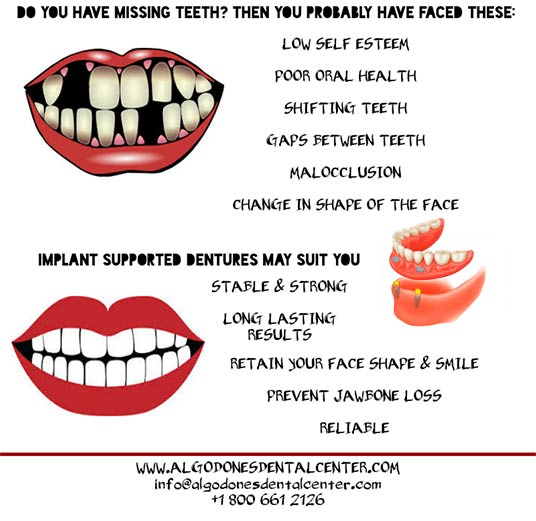 Implant-Supported Overdenture - Infographic