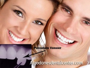 Porcelain Veneers in Los-Algodones - Mexico