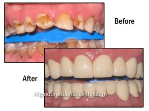 Before-After Zirconia Crowns - Los Algodones