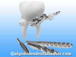 Dental Implants in Los Algodones