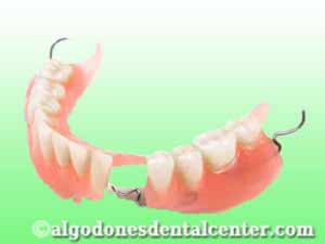 Dentures in Los Algodones - Mexico