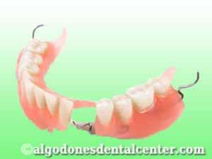 Dentures in Los Algodones - Mexico