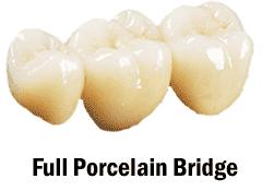 Full Porcelain Bridge