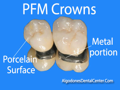 Porcelain-Fused-to-Metal Crowns (PFM) in Los Algodones - Mexico