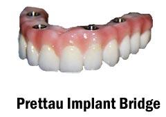 Prettau Implant Bridge