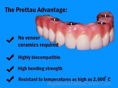 Prettau Dental Implant Bridge in Algodones