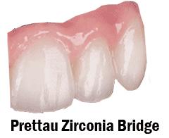 Prettau Zirconia Dental Restorations