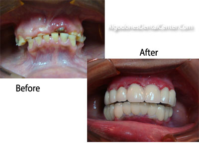 Full Arch Implants Before and After
