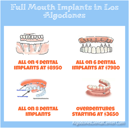 Full Mouth Implants in Los Algodones, Mexico
